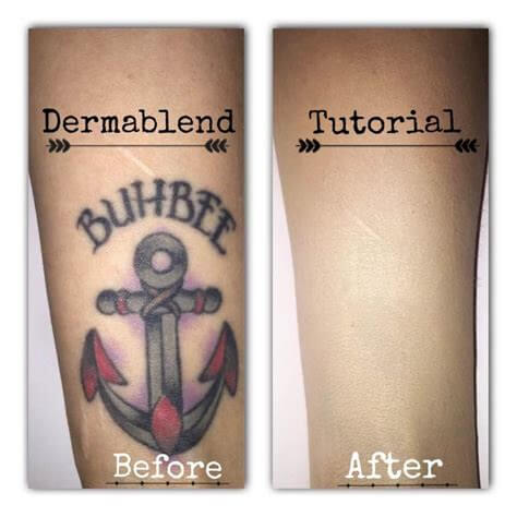 Dermablend tatoo cover up
