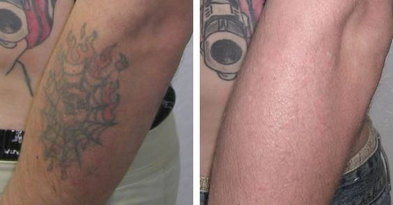 tattoo removal before and after laser